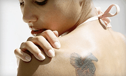 Start the new year fresh with tattoo removal dermmedica for When does a tattoo start peeling