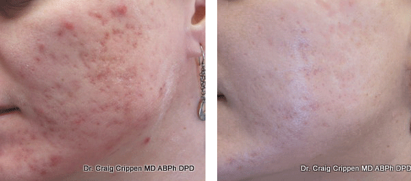 acne scar treatment in kelowna with lasers before and after