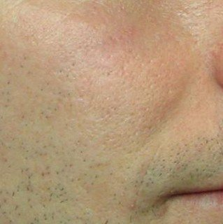 acne scars after laser treatment