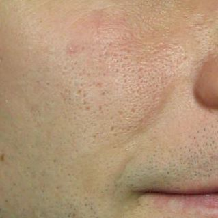 acne scars before laser treatment