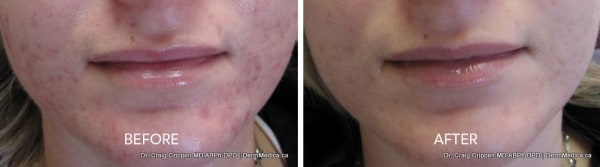 acne therapy in kelowna at dermmedica with dr crippen