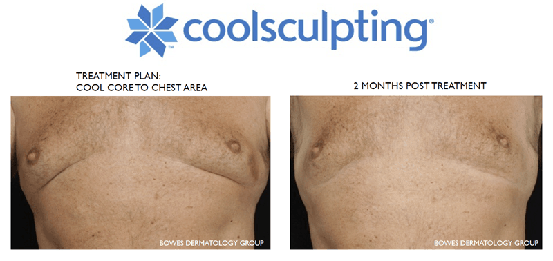 coolsculpting treatment for gynecomastia in kelowna