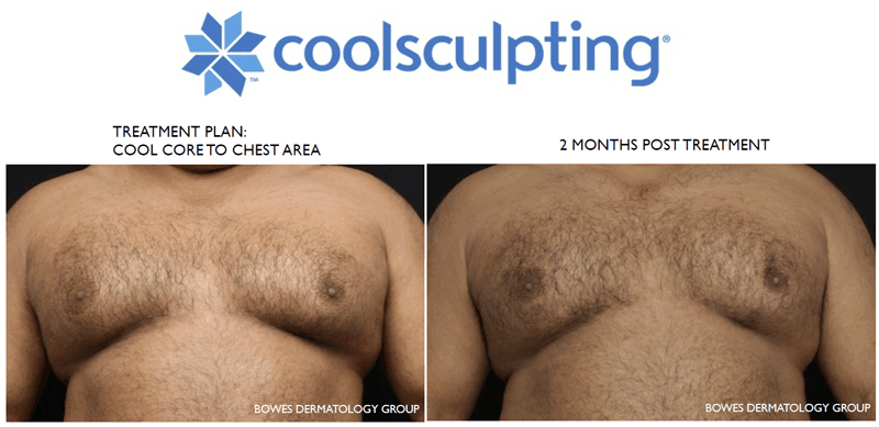 coolsculpting treatments for gynecomastia at dermmedica