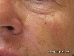 juvederm kelowna cheek after 1