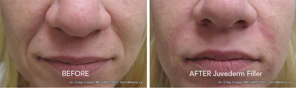 kelowna juvederm dermal filler nasolabial folds before and after