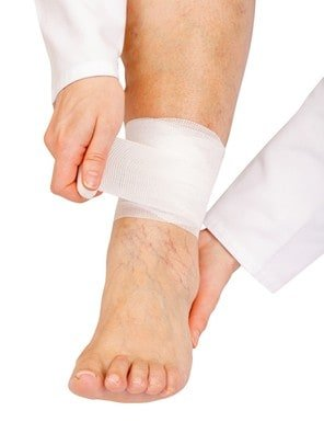 nothing scary about sclerotherapy