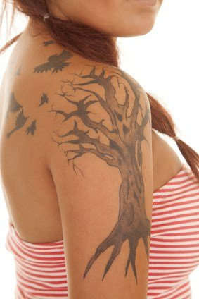 the gift of laser tattoo removal