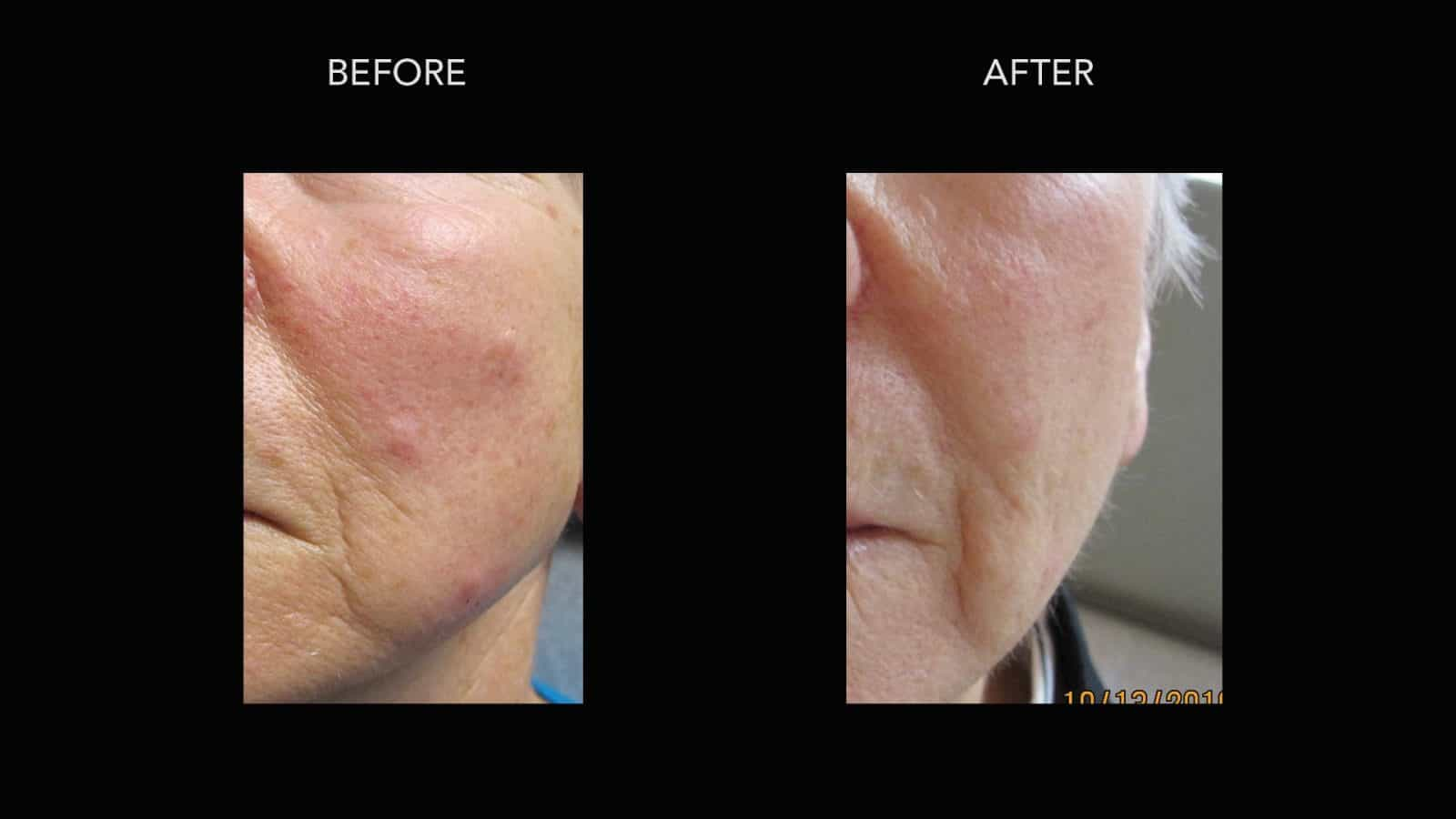 Mole Removal Before Amp After Photos Dermmedica
