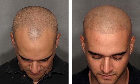 Kelowna area scalp micro pigmentation removal for Head tattoo hairline