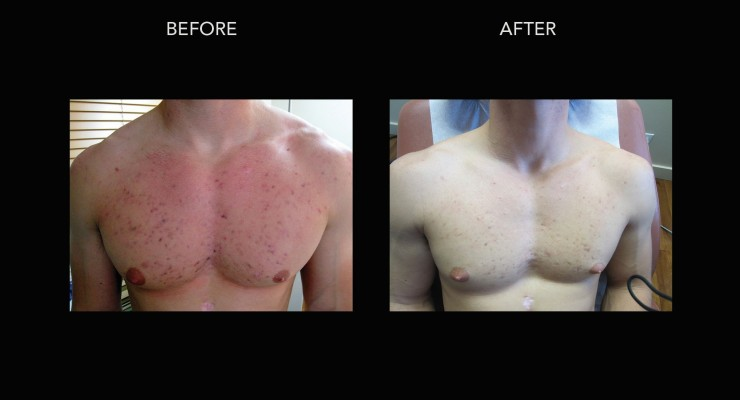 photodynamic therapy acne treatment chest scars remove