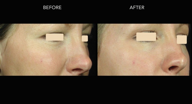 Fractional Laser Treatments