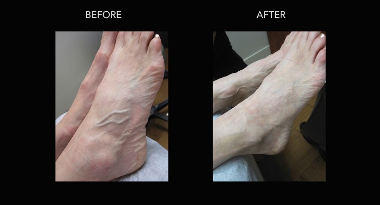 Kelowna Vein Clinic Sclerotherapy Treatments For