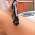 Treatment Journal: What to Expect from Laser Hair Removal