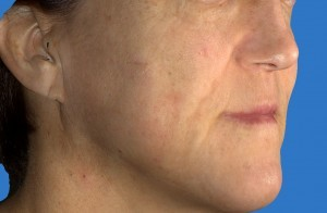 facial for spots treatment Laser brown