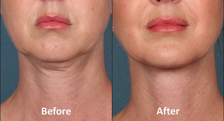 kybella belkyra before after photo 2