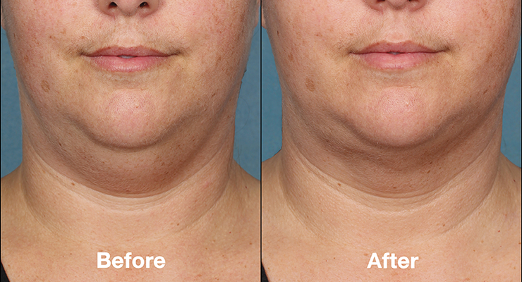 kybella belkyra before after photo 3