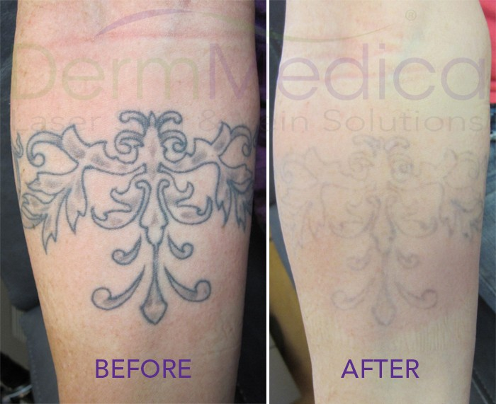 Looking to cover up an old tattoo with an new one laser for New tattoo removal