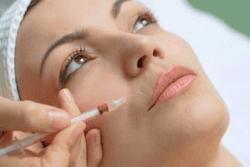 kelowna botox injection