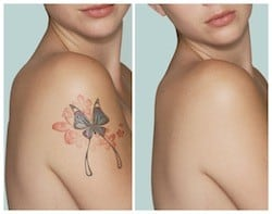 megan fox and laser tattoo removal