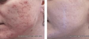 acne treatments in kelowna