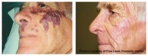 birthmarks before and after laser treatment dermmedica