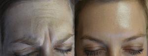 Botox in Kelowna Treatment Forehead - DermMedica