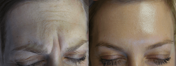 Botox in Kelowna Treatment Forehead - DermMedica
