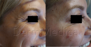 Botox Treatment in Kelowna Crows Feet - DermMedica