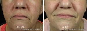 brown spots ipl treatment
