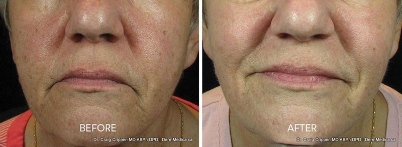 brown spots ipl treatment