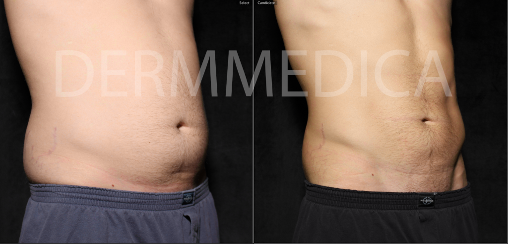 coolsculpting man kelowna