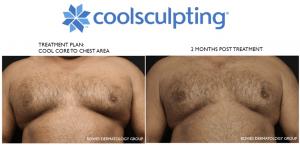 coolsculpting treatments for gynecomastia at dermmedica
