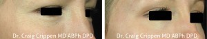 fractional co2 laser eyes before and after