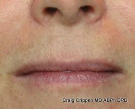 fractional co2 laser mouth after