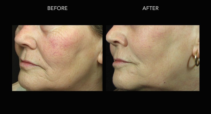 Sun Damage / Aging Skin