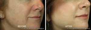 juvederm filler in kelowna before and after face