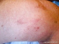 kelowna vein clinic sclerotherapy before