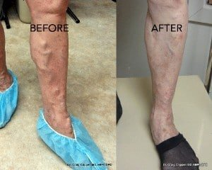 kelowna-vein-clinic-treaments-at-dermmedica