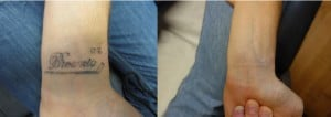 laser tattoo removal before after wrist