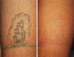 make bad tattoos disappear with lasers