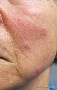 mole removal before kelowna