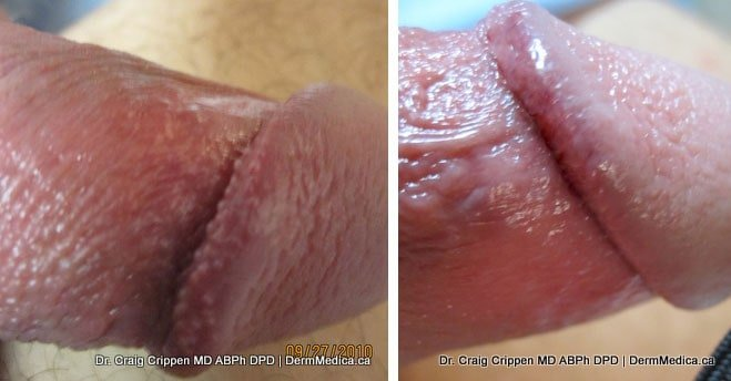 Understood that how common is pearly penile papules