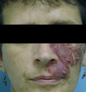 port-wine-stain-dermmedica-pdl-laser-vbeam