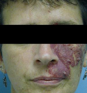 birthmarks port wine stain