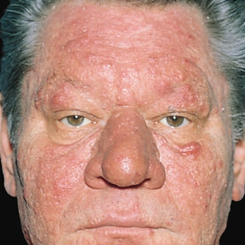 steroid induced acne pathogenesis