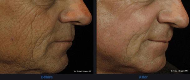 saggy skin dermmedica