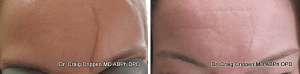 scar treatment with v-beam laser kelowna