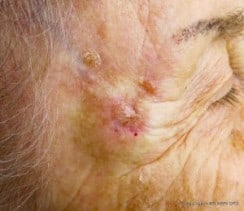 skin cancer in kelowna at dermmedica