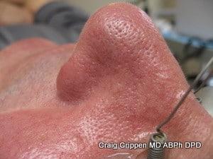 spider veins nose after laser treatment