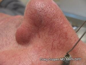 spider veins nose before laser treatment